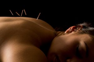 Acupuncture in Winnipeg